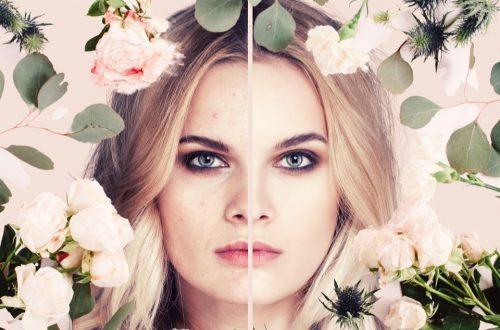 Scientific Skincare - Subclinical Acne